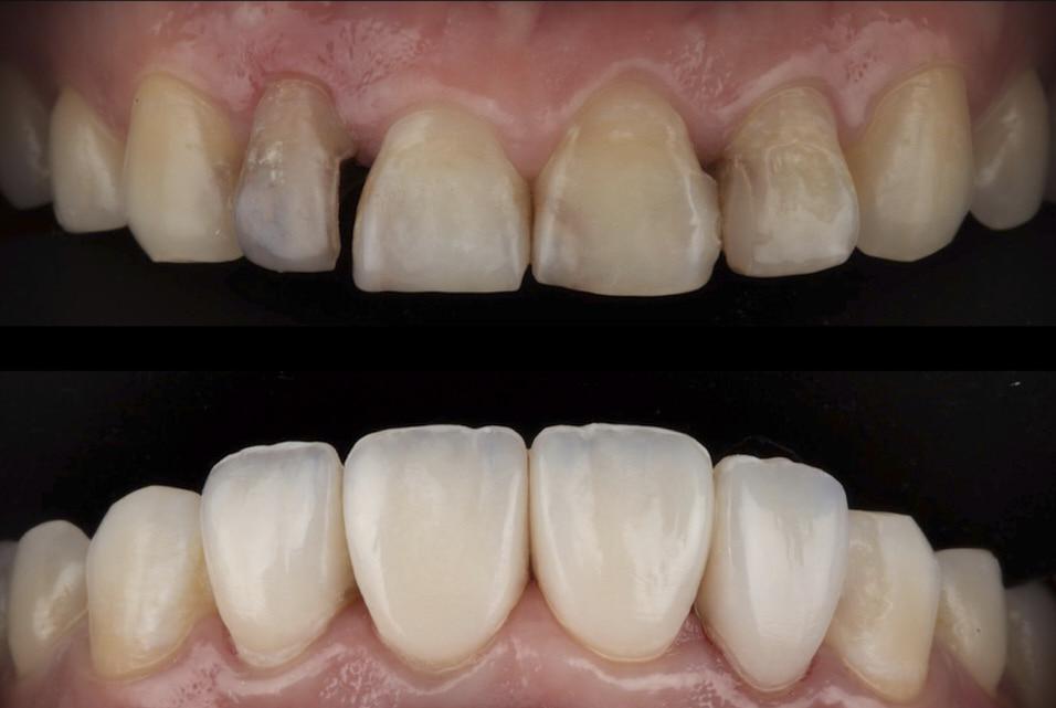 What are Composite Veneers?